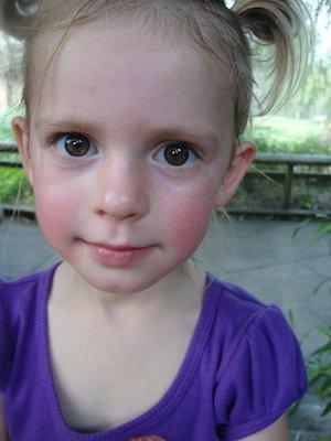 Emma big eyes.JPG